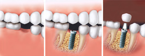 implantate viernheim
